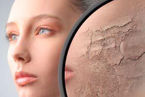 Что делать, если обветрилась кожа лица?